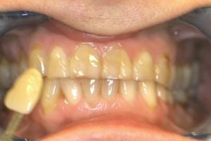 Before whitening 1