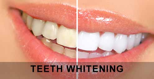 Tooth Whitening – the Myths & Facts you need to know!!